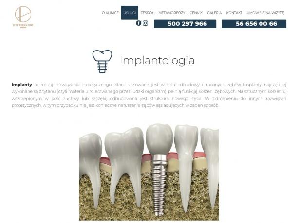 Implanty Toruń